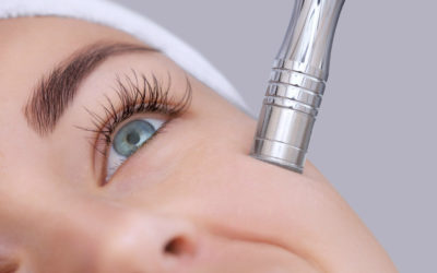 Can Microdermabrasion Reduce Wrinkles?